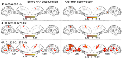 The regional SSBRs evoked by LF and HF stimuli.The distribution of SSBRs after HRF deconvolution was similar to those before HRF deconvolution. The results were visualized with the BrainNet Viewer (http://www.nitrc.org/projects/bnv/).