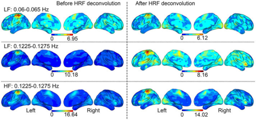 The relative power of Task/Resting throughout the brain.Aside from regions above the threshold in the t-test, slight SSBRs were shown throughout the brain. Paired-sample t-test revealed that the HRF deconvolution did not significantly change the distribution of SSBRs.