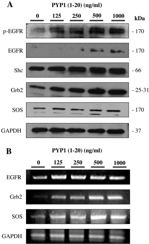 Effect of treatment with Pyropia yezoensis peptide [PYP1 (1–20)] on epidermal growth factor receptor (EGFR), Shc, growth factor receptor bound protein 2 (Grb2) and son of sevenless (SOS) protein and mRNA expression levels in IEC-6 cells. Proteins were subjected to western blot analysis and cDNA was subjected to RT-PCR. (A) Protein expression levels were increased upon incubation with PYP1 (1–20) for 24 h. (B) mRNA expression levels were also increased, as demonstrated by RT-PCR.
