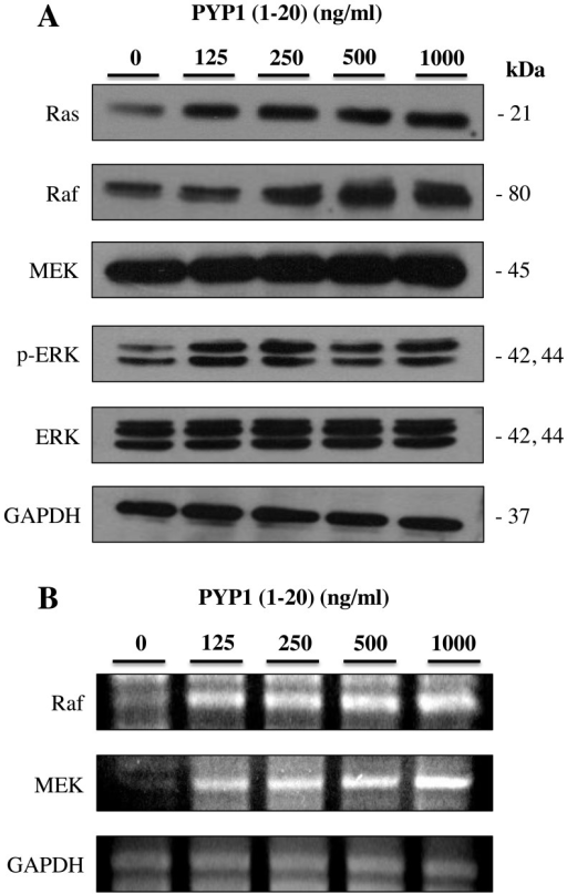 Effects of treatment with Pyropia yezoensis peptide [PYP1 (1–20)] on Ras, Raf, MEK and ERK (A) protein and (B) mRNA expression levels in IEC-6 cells. Whole cell extracts were prepared and analyzed by western blot analysis using anti-Ras, anti-Raf, anti-MEK, anti-phosphorylated-ERK, anti-ERK and anti-glyceraldehyde 3-phosphate dehydrogenase (GAPDH) antibodies.