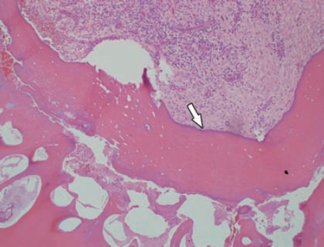 Photomicrograph of the decalcified section of odontoma stained with hematoxylin and eosin stain showing irregularly deposit mature tubular dentin, enclosing clefts and hollow circular spaces of decalcified enamel, and enamel matrix (arrow).