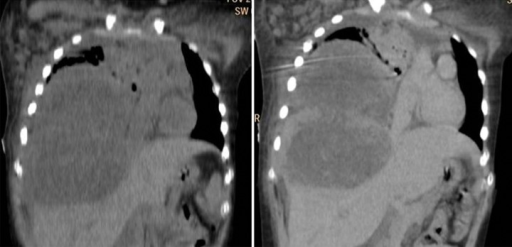 A 12-year-old female with mediastinal choriocarcinoma. CT coronal plain and contrast-enhanced images show a hypodense lesion in the right hemithorax with invasion of the diaphragm and the right lobe of the liver, and causing heterogeneous post-contrast enhancement.