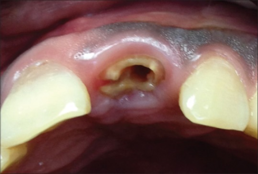 A Maxillary Central Incisor Showing A Root Fracture And Open I