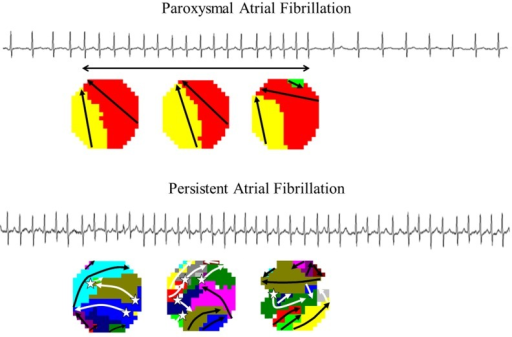 Persistence of atrial fibrillation. Surface electrograms of paroxysms (upper panel) and persistent (lower panel) atrial fibrillation. Wave-maps constructed during these different types of maps are also shown. A wave-map shows individual fibrillation waves represented by colours according to their sequence of appearance. A previously described mapping algorithm was used to classify them into peripheral waves (entering the mapping area from outside the electrode array), breakthrough waves (appearing at the epicardial surface inside the mapping area) or discontinuous conduction waves (fibrillation waves starting with a delay of 13–40 ms from boundaries of other waves). Sites of epicardial breakthroughs are indicated by white asterisks; white arrows indicate direction(s) of expansion of epicardial breakthrough or discontinuous fibrillation waves. Peripheral fibrillation waves are indicated by black arrows