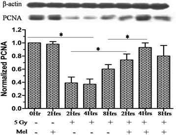 Effect of melatonin pre-treatment on PCNA protein expression of testes in mice exposed to whole-body 60Co γ-irradiation. Western blot was performed to measured PCNA protein expression after 2h, 4h and 8h post-irradiation. The β-actin protein was used as loading control. *p < 0.001