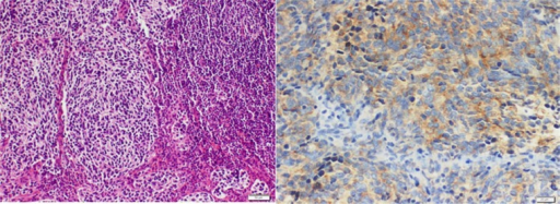 Medulloblastoma metastasized to supraclavicular lymph node. A. H&E: High-grade blue tumor cells forming sheets and nodules. B. Immunohistochemistry: Tumor cells are positive for synaptophysin.