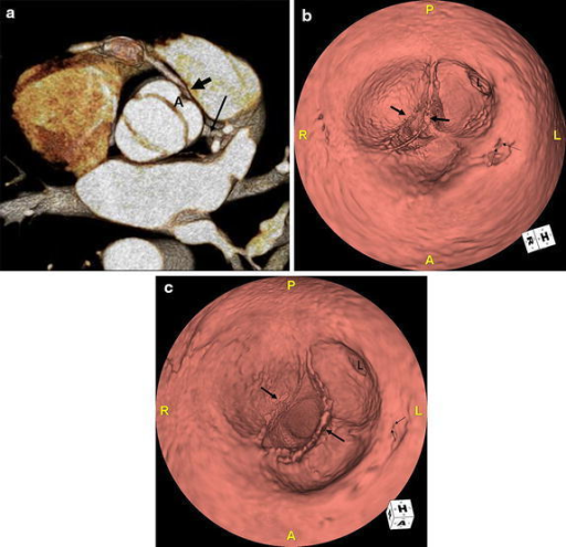 a 3D CT image in systole shows bicuspid aortic valve with a symmetric and elliptical orifice. Note the right (arrow) and left (long arrow) coronary arteries originating from anterior cusp (A) formed by fusion of the right and left coronary cusp. b Three-dimensional virtual angioscopic image of the aortic root shows the bicuspid aortic valve (arrows), ostium of the left main coronary artery (L), and a slit-like orifice of the right coronary artery (thin arrows) which is located high at the sinotubular junction. c In the systolic phase, the orifice of the RCA is nearly effaced (thin arrows).