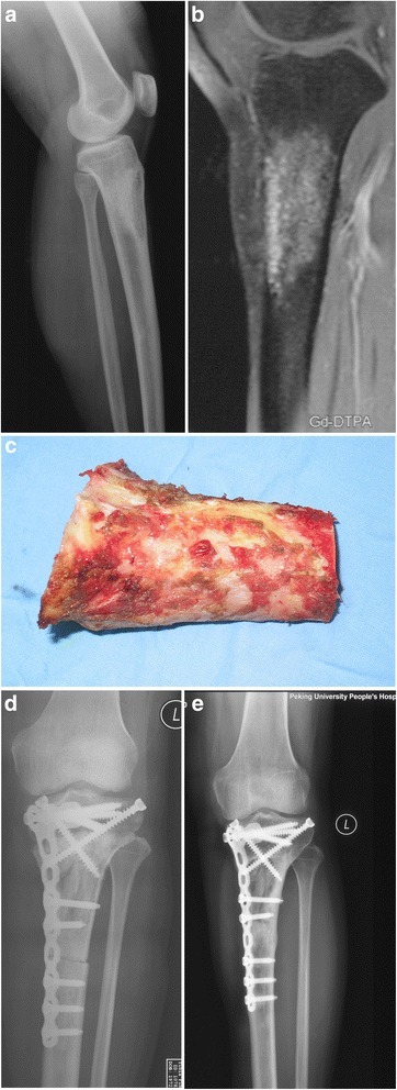A 42-year-old patient with an adamantinoma of the left proximal tibia. a X-ray showed the lesion located at the proximal part of the left tibia. b MRI showed the knee joint was not involved by the tumor. c The structural bone and the periosteum were preserved after the tumor was cleared away. d X-ray showed the devitalized bone matched well with the host bones after the operation. e X-ray showed the cutting lines was disappeared, and the devitalized bone integrated well with the host bone at each ends 11 months after the operation