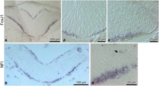 Expression of proglial genes, FoxJ1 (A–A″) and NFI) (B,B′), in the radial nerve cord (RNC) of H. glaberrima. (A,B) show low magnification overview micrographs of the entire cross section profile of the RNC. (A′) is a detailed view of the midline region of the ectoneural neuroepithelium. (A″,B′) show higher magnification views of the lateral region of the ectoneural neuroepithelium.