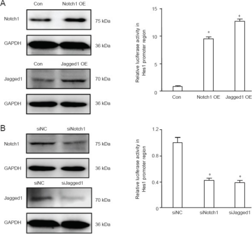 Specific activation or inhibition of the Notch signaling pathway in endothelial progenitor cells.(A) Left: Western blot assay showing the overexpression of Notch1 and Jagged1. Con: Control group; Notch1 OE: Notch1 overexpression group; Jagged1 OE: Jagged1 overexpression group. Right: Hes1 promoter activity measured with luciferase reporter assay. (B) Left: Western blot assay showing knockdown of Notch1 and Jagged1. siNC: Control group; siNotch1: Notch1 knockdown group; siJagged1: Jagged1 knockdown group. Right: Hes1 promoter activity measured with luciferase reporter assay. Hes1 promoter activity is presented as a ratio to the control group. Data are expressed as the mean ± SD. Differences between groups were compared using one-way analysis of variance and nonparametric Mann-Whitney U test. Experiments were performed in triplicate. *P < 0.05, vs. control group.