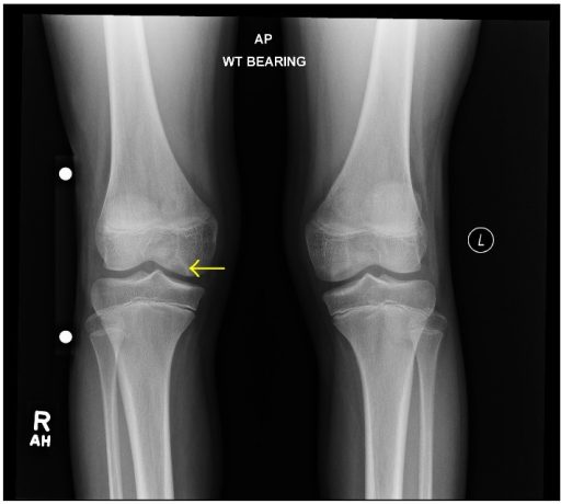 A 13-year-3-month-old female with FOPE zones at both proximal tibiae. Findings: AP radiograph of the bilateral knees at time of initial presentation shows a subtle lytic lesion abutting the articular surface of the right medial femoral condyle (arrow). The radiographs were initially interpreted as normal. Technique: AP radiograph kVp = 77, mAs = 4.