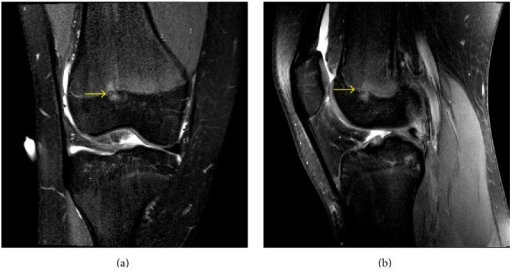 A 13-year-10-month-old female with FOPE zone of the distal right femur. Findings: (a) coronal proton density fat-saturated image shows a 5 mm area of periphyseal edema slightly eccentrically located on both sides of the distal femur physis (arrow). The edema is slightly more prominent on the epiphyseal side of the physis. (b) Sagittal proton density fat-saturated image again shows the eccentrically located area of periphyseal edema in the distal femur physis (arrow) with the edema again slightly more prominent on the epiphyseal side. The distal femur physis is narrowed but remains open. Technique: (a) coronal PD fat-saturated MRI (TR = 2,826.1, TE = 30), ST = 2.5 mm, spacing = 3.3 mm, FOV = 15 cm, and matrix = 312 × 244; (b) coronal PD fat-saturated MRI (TR = 2,826.1, TE = 30), ST = 2.5 mm, spacing = 3.3 mm, FOV = 15 cm, and matrix = 312 × 244.