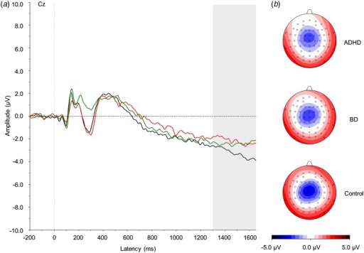 (a) Grand average event-related potentials to cue stimuli at theCz electrode, showing the contingent negative variation in the 1300–1650 ms window.ADHD, Attention-deficit/hyperactivity disorder (light grey; red online); BD, bipolardisorder (mid grey; green online). Controls are shown in black. (b)Topographic maps for each group. For a colour figure, see the online version.