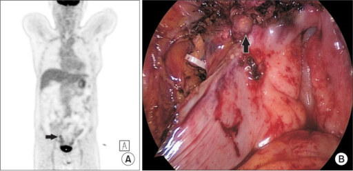 (A) Positron emission tomography (PET)-computed tomography (CT) image showing a focal hypermetabolic lesion between the right aspect of the rectum and the uterus (→). (B) Laparoscopic findings showing a rectal shelf mass (↑).