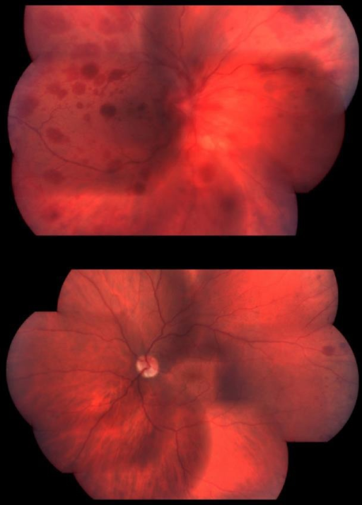 Fundus examination showing blurred, hyperemic optic disc with peripapillary hemorrhages and scattered white-centered retinal hemorrhages in the periphery and posterior pole in both eyes accompanied with macular folds in the OS.