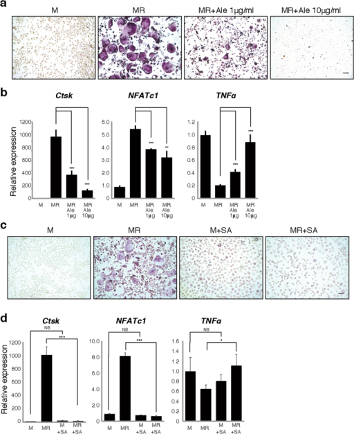 Alendronate treatment or Streptococcus aureus infection increases TNFα expression and inhibits osteoclastogenesis.Osteoclast progenitors were isolated from wild-type mice and cultured in the presence or absence of M-CSF (M) and RANKL (R) with or without 1 or 10 μg/ml alendronate (Ale) (a,b) or Streptococcus aureus lysate (SA) (c,d). Osteoclast formation was evaluated by TRAP staining (a,c), or realtime PCR to analyze expression of Cathepsin K (Ctsk) and NFATc1 (b,d). TNFα expression was also analyzed by realtime PCR(b,d). Scale bar = 100 μm. Data represent mean Ctsk, NFATc1 or TNFα expression relative to β-actin ± SD (n = 3). *P < 0.05; **P < 0.01; ***P < 0.001; NS, not significant. Representative data of at least two independent experiments are shown.