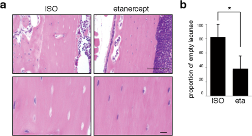 Blocking TNFα significantly antagonizes osteonecrosis development.Wild-type mice were administered alendronate for two weeks. Then, infectious osteomyelitis was established by Streptococcus aureus infection of left femurs. The TNFα inhibitor etanercept (eta) or ISO type control (ISO) was subcutaneously injected one week before surgery and then subsequently twice a week. Seven days after surgery, cortical bone sections of left femurs were prepared and stained with HE (a), and the proportion of empty versus whole lacunae was calculated (b). Scale bars = 100 (upper) or 10 μm (lower panels). Data shows the mean percentage (%) of empty versus whole lacunae ± SD (n = 4, *P < 0.05). Representative data of at least two independent experiments are shown.