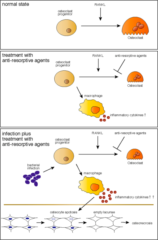 A schematic model for osteonecrosis development by osteomyelitis in the presence of administration of anti-resorptive agents.(upper) In the normal state, osteoclast progenitors differentiate into osteoclasts by RANKL exposure. (middle) Treatment with anti-resorptive agents converts osteoclast progenitors to inflammatory cytokine-expressing macrophages. (lower) Bacterial infection further promotes inflammatory cytokine expression, which in turn promotes osteocyte apoptosis, leading to osteonecrosis.