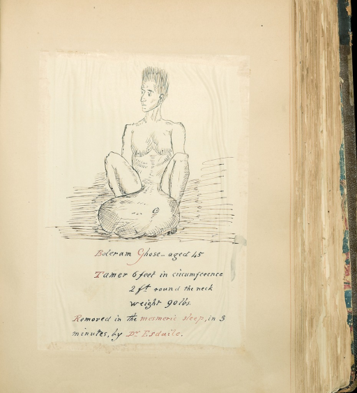 <p>Image  of a drawing of a man, named Boleram Ghose, with a 90 lb tumor extending from his abdominal area. Under the drawing it is explained that the tumor had been removed in the mesmeric sleep, in three minutes, by Dr. Esdaile. Purland's Scrapbook, vol. 4.</p>