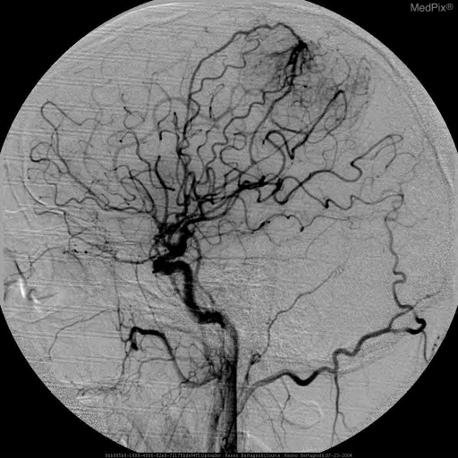 Early arterial contrast blush with late venous phase staining in this extra-axial mass fed by middle meningeal and pial branches of MCA and ACA