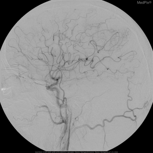 AP and lateral post embolization images demonstrate decreased blush of contrast at the extra-axial mass.
