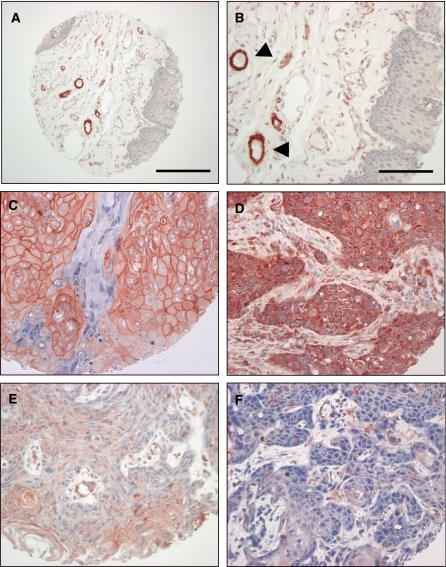 Cortactin expression in normal oral mucosa and HNSCC. Staining of cortactin was performed as indicated in Materials and Methods. Normal epithelium (A–B) is devoid of staining, arrowheads indicate cortactin staining of blood vessels. Scale bar represents 200 μm in the tissue core shown in panel A and 100 μm in the higher magnification images shown in panels B–F. (C–D) Squamous cell carcinoma demonstrating strong membrane and cytoplasmic staining, respectively. (E) Squamous cell carcinoma exhibiting weak staining. (F) Squamous cell carcinoma displaying absence of immunohistochemical staining. Only strong staining (C–D) was scored as cortactin overexpression. Weak staining or absence of staining (E–F) was scored as negative for this study. Calibration bar represents 200 μm in images on the left.