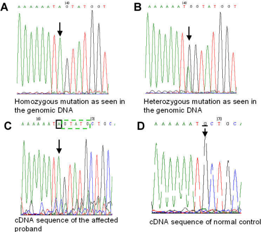 Mutation analysis of LCA5 gene. A: Sequence chromatogram of the LCA5 gene showing c.955G>A homozygous mutation in the genomic DNA of the affected patient. The homozygous mutation is indicated by the arrow. B: Sequence chromatogram of the LCA5 gene showing c.955G>A heterozygous change in the genomic DNA of the unaffected father. The heterozygous variation is indicated by the arrow. C: cDNA sequence of the LCA5 gene of the affected proband with the mutated splice site. The black square box and the arrow indicate the mutated base. The green dashed box indicates the 5 base insertion of the adjacent intron due to the donor splice site mutation. D: cDNA sequence of a normal control showing the wild type base as indicated by the arrow and the underlined sequence annotation.