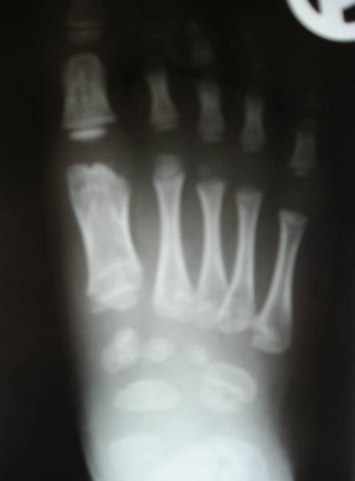 Anteroposterior foot radiograph showed defective ossifi   Open-i