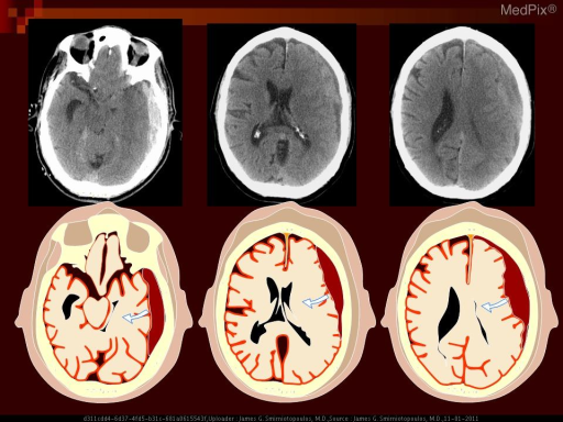 Schematic of left extraaxial mass (subdural hematoma) pressing on the cerebral hemisphere.  There is lateral displacement of the brain to the right, with compression of the ventricle, subfalcine herniation, and midline shift.  There is downward herniation of the medial temporal lobe (uncus) that would be shown best on a coronal image.