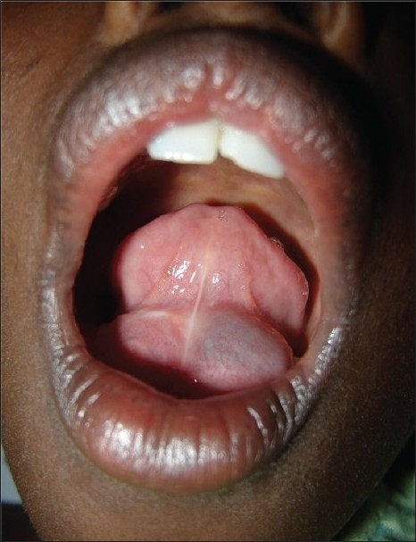 Floor Of Mouth Swelling 45