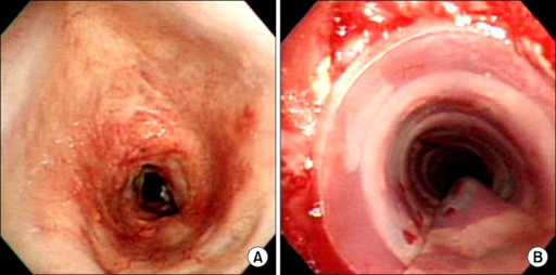 Representative bronchoscopic findings in a patient with post-intubation tracheal stenosis. (A) Baseline bronchoscopy showed marked tracheal stenosis. (B) After silicone stent insertion, bronchoscopy showed good patency in trachea.