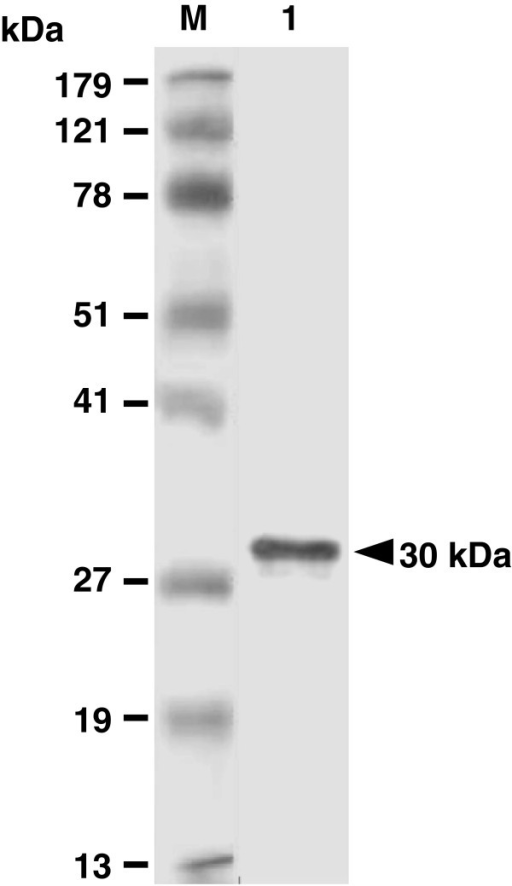 Analysis of purified rSAG1 by Western blotting. Purified rSAG1 was prepared as described in the Methods and analyzed with anti-SAG1 mouse mAb TG-1 (lane 1). Standard protein markers (lane M) are shown at the left.