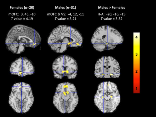 Brain responses to smoking cues relative to non-smoking cues. For females crosshairs are centered on the medial orbitofrontal cortex (mOFC), for males crosshairs are centered on the ventral striatum (VS), and for direct comparisons between males and females crosshairs are centered on the left hippocampus/amygdala (H-A). Representative fMRI sagittal, axial, and coronal brain slices analyzed in SPM8 and overlain on the MNI brain. T values range from 3.10 to 4.19, corrected at p < 0.005. Images are displayed neurologically (left is left). An interactive visual display of all brain data in all three planes can be found at http://franklinbrainimaging.com.