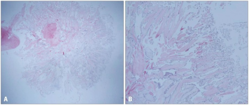Gross specimen of 1:1 paraffin block (H&E stain, × 10) (A) reveals central stalk with papillary projection. Histological examination of the resected tumor showing papillary projection. The tumor surface is covered by a single layer of endocardial cells with an overlying thin layer of an underlying acellular stroma composed of elastic fibers and collagen (H&E stain, × 40) (B).