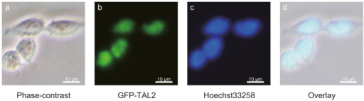 The localization of GFP-TAL2 visualized by fluorescence microscopy.P19 cells were transfected with the expression vector encoding GFP-TAL2 and were stained with Hoechst33258 48 h after transfection. (a) Phase-contrast. (b) GFP-TAL2. (c) Hoechst33258. (d) Overlay.