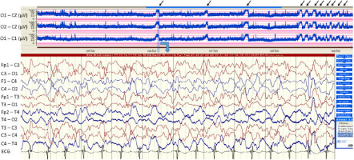The waveforms of aEEG and cEEG for 70 hours after the induction of TH. The upper panel represent amplitude-integrated EEG (aEEG), showing a repetitive narrowing bandwidth with a sharp rise in the lower margin accompanied by a smaller rise in the upper margin (arrows), which was suspected as intermittent and discrete seizrues. Raw cEEG tracing corresponding to light blue band in aEEG confirms the waveform of aEEG as seisures.