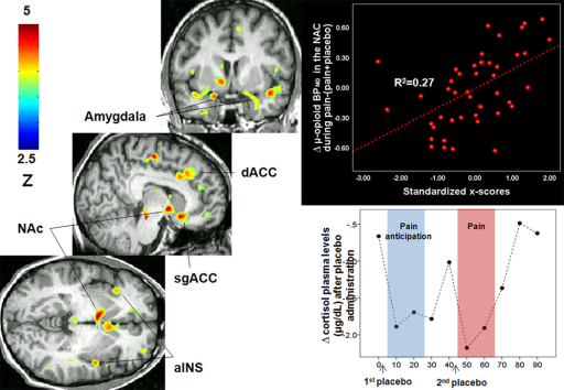 Personality traits effect on placebo-induced activation of regional μ-opioid receptor mediated neurotransmissionLeft: Regions of greater μ-opioid system activation during placebo administration in subjects with high levels of Ego Resilience, Straightforwardness and Altruism and low levels of Angry Hostility. Upper right: Upper right: x-scores correlations with μ-opioid system activation (change in μ-opioid BPND) in the NAc after placebo administration. Lower right: reductions in cortisol plasma levels (mg/dl) after placebo administration. The sustained pain challenge was administered during 20 min, starting at 45 min scan time. Abbreviations: aINS: Anterior Insula; NAc: nucleus accumbens; d/sgACC: dorsal and subgenual anterior cingulate cortex.