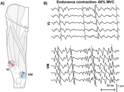 Electrode arrays positions on VL and VM muscles (A) and representation of the EMG signals (B).Myoelectric signals were detected in single differential configuration, using bidimensional arrays, positioned along the length of the muscles, between the innervation zone and the distal tendon. Channels chosen by visual analysis, for the subsequent global analysis, are indicated by the ovals.