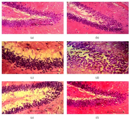 Effect of lisinopril and fosinopril on the morphology of dentate gyrus region of hippocampus in scopolamine-induced amnesic rats. Light photomicrographs of dentate gyrus layer of hippocampus in (a) control rats, (b) scopolamine, (c) lisinopril (0.225 mg/kg) + scop., (d) lisinopril (0.45 mg/kg) + scop., (e) fosinopril (0.90 mg/kg) + scop., and (f) fosinopril (1.80 mg/kg) + scop. Scale bar represents 1 µ.