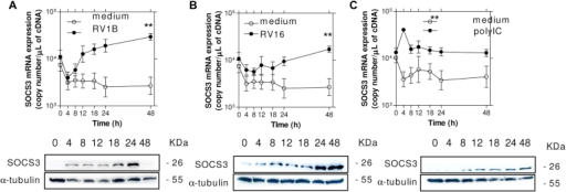 SOCS3 mRNA and protein were induced in BECs by rhinovirus and polyI:C. Primary human BECs were infected with RV1B, RV16, or polyI:C (1 μg/mL), and total RNA and total protein were harvested over time. RV1B (A), RV16 (B), and polyI:C (C) all induced SOCS3 mRNA and protein in a time-dependent manner. Values are presented as means ± SEMs (n = 4 experiments). **P < .01 versus medium treatment, 2-way ANOVA.