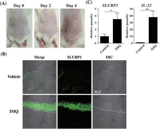 IMQ-induced psoriatic mouse skin has an abundance of SLURP1.IMQ or control cream was applied daily to the shaved backs for BALB/c mice. (A) Phenotypical presentation of mouse back skin after 2 or 4 days of IMQ treatment. (B) Immunofluorescent staining of vehicle or IMQ cream-treated mouse skin using an anti-SLURP1 antibody. Dashed lines indicate the border between the epidermis and dermis. Scale bars = 50 μm. The experiments were repeated six times with similar results. (C) Quantification of IL-22 and SLURP1 mRNA expression in skin from mice treated for 2 days with IMQ. Bars depict the mean ± S.D. (n = 6) of fold-changes in mRNA copy number normalized to GPADH and quantified relative to control. *p < 0.05, **p < 0.01 vs. control (Student's t-test).