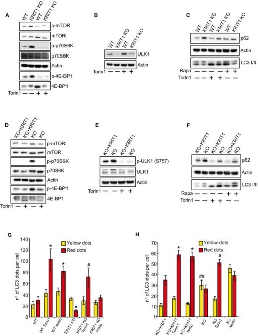 KRIT1 loss-of-function activates the mTOR-ULK1 pathwayImmunoblot analysis with antibodies directed against phosphorylated mTOR (Ser 2448), total mTOR, phosphorylated p70 S6 Kinase (Ser 371), total p70 S6 Kinase, phosphorylated 4E-BP1 (Thr 37/46), and total 4E-BP1; actin was used as a loading marker. Where indicated, KRIT1 wt and KRIT1-KO endothelial cells were treated with 100 nM Torin1 for 4 h. The results are representative of three independent experiments.Immunoblot analysis of total ULK1 and actin in KRIT1 wt and KRIT1-KO endothelial cells. Where indicated, cells were treated with 100 nM Torin1 for 4 h. The results are representative of three independent experiments.Immunoblot analysis of p62, LC3 I/II, and actin in KRIT1 wt and KRIT1-KO endothelial cells treated with 100 nM Torin1 or 500 nM rapamycin for 4 h. The results are representative of three independent experiments.Immunoblot analysis with antibodies directed against phosphorylated mTOR (Ser 2448), total mTOR, phosphorylated p70 S6 Kinase (Ser 371), total p70 S6 Kinase, phosphorylated 4E-BP1 (Thr 37/46), and total 4E-BP1; actin was used as a loading marker. Where indicated, KRIT1-KO re-expressing KRIT1 (KO+KRIT1) and KRIT1-KO MEFs were treated with 100 nM Torin1 for 4 h. The results are representative of three independent experiments.Immunoblot analysis of phosphorylated ULK1 (Ser 757), total ULK1, and actin in KRIT1 KO+KRIT1, and KRIT1 KO MEFs. Where indicated, cells were treated with 100 nM Torin1 for 4 h. The results are representative of three independent experiments.Immunoblot analysis of p62, actin, LC3 I/II in KO+KRIT1 and KRIT1-KO cells. Where indicated, cells were treated with 100 nM Torin1 for 4 h or 500 nM rapamycin for 4 h. The results are representative of three independent experiments.KRIT1 wt and KRIT1-KO endothelial cells were transiently transfected with mRFP-GFP-LC3. Where indicated, the cells were treated with 100 nM Torin1 for 4 h or 2 μM xestospongin B for 4 h. The differences in the autophagic flux were evaluated by counting the yellow LC3 I/II dots/cell (RFP+GFP+) and red LC3 dots/cell (RFP+GFP−) for each condition. Yellow dots: autophagosomes; red dots: autophagolysosomes. *P = 5.74e−5 (red dots, WT ctrl vs. WT Tor1); *P = 9.62e−5 (red dots, WT ctrl vs. WT xesto); *P = 0.00727 (red dots, WT ctrl vs. KO ctrl); #P = 0.00046 (red dots, KO ctrl vs. KO Tor1). The data are expressed as the mean ± s.e.m.KO+KRIT1 and KRIT1-KO MEFs were transiently transfected with the mRFP-GFP-LC3 tandem construct. Where indicated, the cells were treated with 100 nM Torin1 for 4 h or 2 μM xestospongin B for 4 h. The differences in the autophagic flux were evaluated by counting the yellow LC3 I/II dots/cell (RFP+GFP+) and red LC3 dots/cell (RFP+GFP−) for each condition. Yellow dots: autophagosomes; red dots: autophagolysosomes. *P = 0.00023 (red dots, KO+KRIT1 ctrl vs. KO+KRIT1 Tor1); *P = 0.00045 (red dots, KO+KRIT1 ctrl vs. KO+KRIT1 xesto); #P = 3.08e−6 (red dots, KO ctrl vs. KO Tor1); ##P = 6.73e−5 (yellow dots, KO+KRIT1 ctrl vs. KO ctrl). The data are expressed as the mean ± s.e.m. of four independent experiments.Source data are available online for this figure.