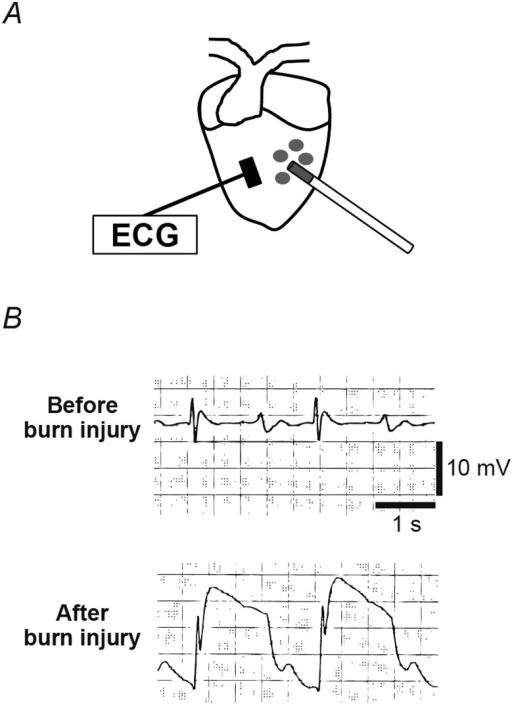 Induction Of Subepicardial Burn Injury And The Ecg Chan Open I