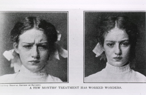 <p>Two views of a female trachoma patient after treatment: on left is depiction of early stages of improvement characterized by ability to open eyes, on right she has her eyes wide open.</p>