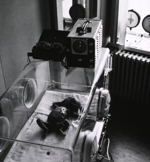 <p>Interior view: monitoring devices on top of an incubator are connected to an infant in the incubator; the heart and blood circulation of the infant are being continuously monitored.</p>