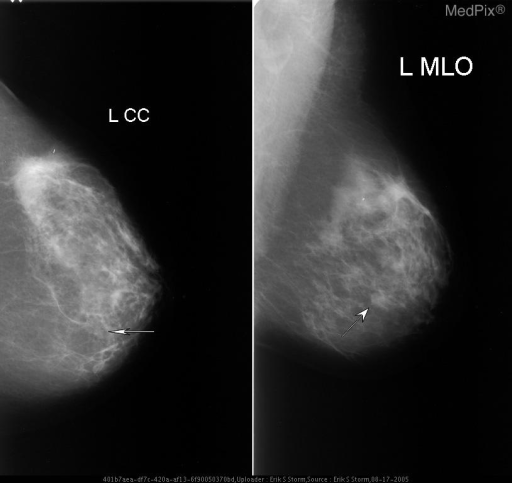 CC and MLO veiws of the left breast showing a partially-circumscribed mass with some obscured margins in the lower-inner quadrant.