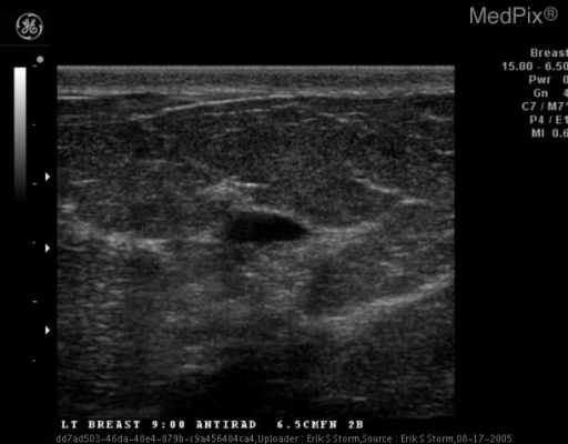 Sonography demonstrates an anechoic cyst with posterior enhancement, thin walls, and no complexity.  A simple cyst.