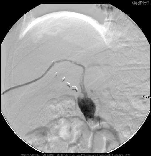 Repositioning of drain to maximize drainage of both the right and left intrahepatic biliary ducts which both have long segment proximal stenoses.