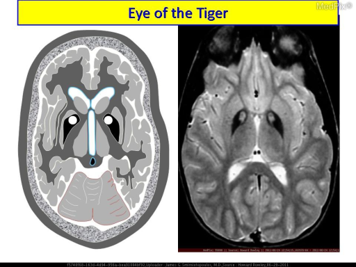 Classic 'eye of the tiger' appearance of PANK: hypointensity of the globus pallidus from iron deposition, with a medial hyper intensity. PMID: 16775270 PMID: 12510040