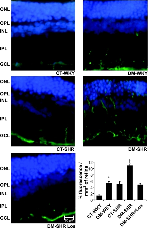 Evaluation of glial cell reactivity by GFAP immunofluorescence in retinas of control and diabetic WKY and spontaneously hypertensive rats. The presence of diabetes or hypertension alone induced a clear increase in GFAP immunoreactivity throughout the retina. The concomitance of both provoked a further increase in glial reactivity, and the losartan treatment abolished this effect. Bars = means ± SD of percentage of fluorescence per millimeter squared of retina. Scale bars = 50 μm. The graph shows 1.3 ± 0.3 vs. 5.3 ± 0.5% of fluorescence/mm2 of retina for control WKY vs. diabetic WKY rats, *P < 0.0001; 5.3 ± 0.5 vs. 4.9 ± 0.08% of fluorescence/mm2 of retina for diabetic WKY rats vs. control SHRs, P = 0.4; 4.9 ± 0.08 vs. 10.8 ± 0.5% of fluorescence/mm2 of retina for control SHRs vs. diabetic SHRs, †P < 0.0001; 10.8 ± 0.5 vs. 4.7 ± 0.5% of fluorescence/mm2 of retina for diabetic SHRs vs. diabetic losartan (Los)-treated SHRs, †P < 0.0001. CT, control; DM, diabetic; GCL, ganglion cell layer; INL, inner nuclear layer; IPL, inner plexiform layer; ONL, outer nuclear layer; OPL, outer plexiform layer. (A high-quality digital representation of this figure is available in the online issue.)